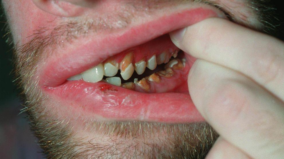 tumör i munnen