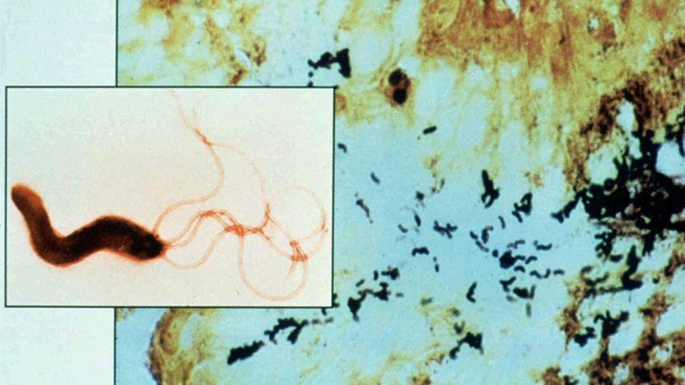 En bakterie som ligger bakom magsår kan vara på väg att försvinna, enligt en svensk studie, skriver Upsala Nya Tidning (UNT).
