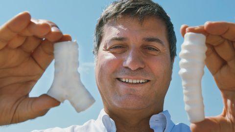 Flera patienter dog efter att ha fått plaströr inopererade i halsen av professor Paolo Macchiarini.