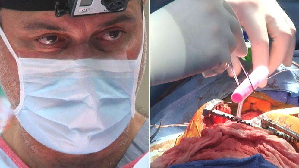 Paolo Macchiarini när han opererar in konstgjorda luftstrupar.