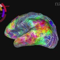 Hjärnkarta