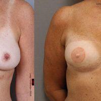 Ny studie vill undersöka påverkan av bröstrekonstruktion.