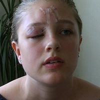 Tilda hade ett ordentligt sår på ögonlocket.