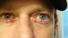 Jerker Olsson har regelbundet problem med nervsystemet, hudåkommor och blödande ögon.