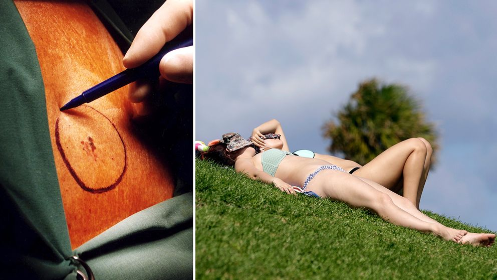 Malignt melanom (hudcancer) är den snabbast ökande cancerformen i landet.