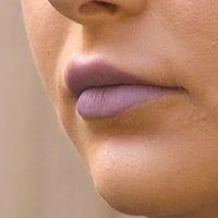 Moa Ohlsson förstorade läpparna för några veckor sen