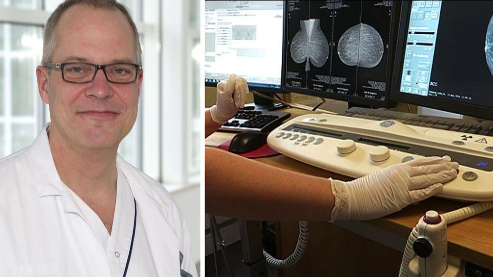 Anders Ahlsson och mammografi i montage