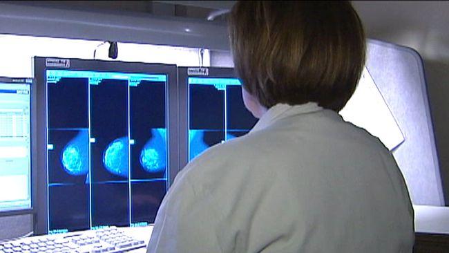 Kvinna i vit rock framför röntgenbilder av bröst