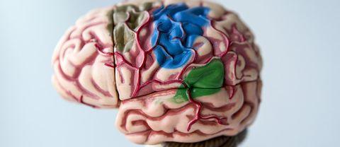 En hjärna i plast.