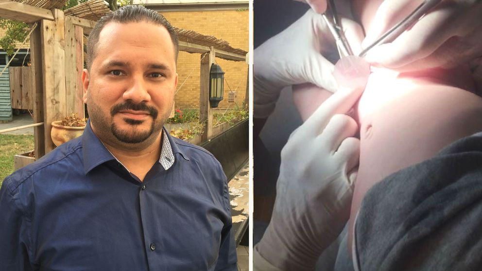 Bashar Qazaz skakande berättelse om hur det gick till när hans son skulle omskäras