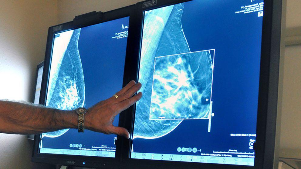 Mammografi.