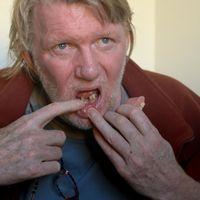 Mauritz visar sina ruttnande tänder och håller i ett par löständer.