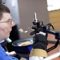 Helförlamade Bill Kochevar, 56, använder tankekraft för att styra sin arm.