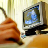 Ny teknik ska resultera i färre farliga tester på ofödda barn.