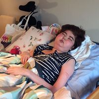 15-åriga Nikki är förlamad från midjan och neråt efter ett epileptiskt anfall.