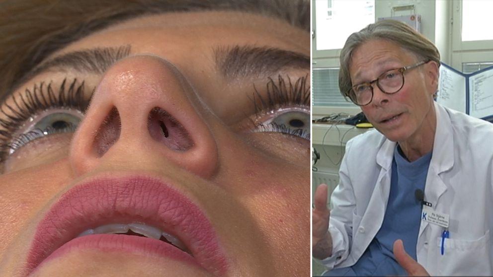 Bild på patients näsa och bild på Pär Stjärne.