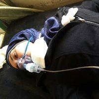 Aya Fadl överlevde gasattacken i Khan Sheikhun med förlorade mer tio familjemedlemmar