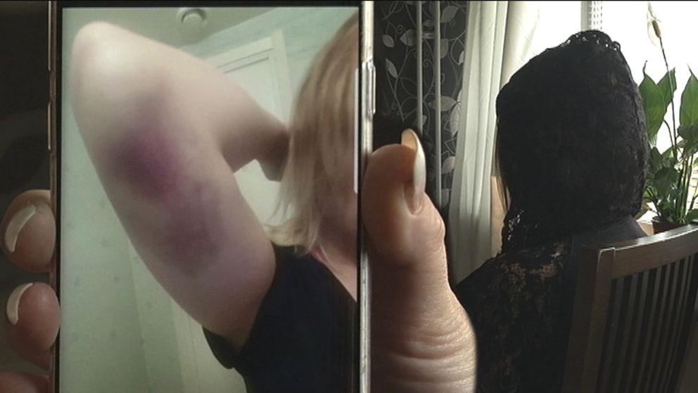 stora blåmärken på kvinnoarm visas på bild på mobilskärm, en kvinnoperson som ses bakifrån sitter i bakgrund
