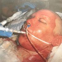 delad bild – en kille vid järnväg, och bild på brännskadad person i sjuksäng med slangar i munnen osv.