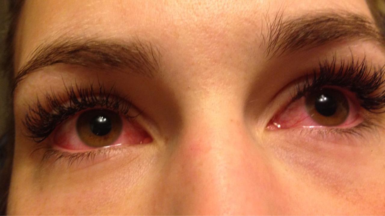 Röda ögon efter dator