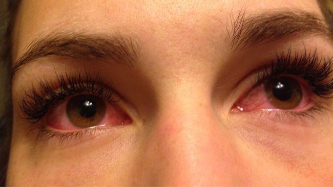ont i ögonen när jag tittar upp