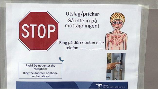 Mässling: Nytt Misstänkt Fall Av Mässling I Göteborg