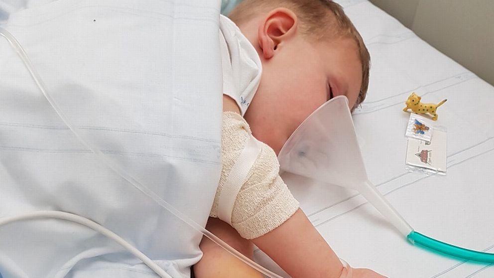 Barn ligger i sjukhussäng efter operation.