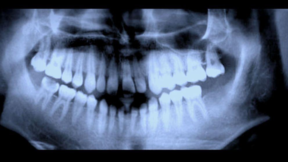 Tandröntgen är en av metoderna som använts för att åldersbestämma flyktingar.