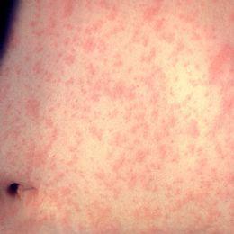 Arkivbild på person som smittats av mässling.