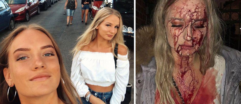 Systrarna Amanda och Sophie Johansson delade bilden på Sophie efter misshandeln för att hitta vittnen till brottet. I stället användes bilden världen över av grupper som är emot invandring.