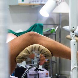 Fall av livmoderhalscancer ökar