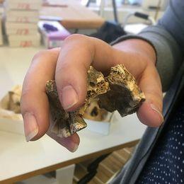 Det var när Maria Petersen undersökte det 147:e skelettet som hon gjorde fyndet av lepra.