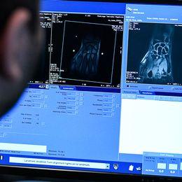Mohassad Al Atia, röntgensjuksköterska, studerar bilderna från magnetkameran på sin skärm.