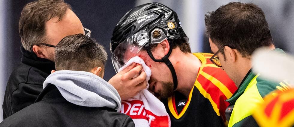 Marcus Ersson fick en skridsko i ögat.