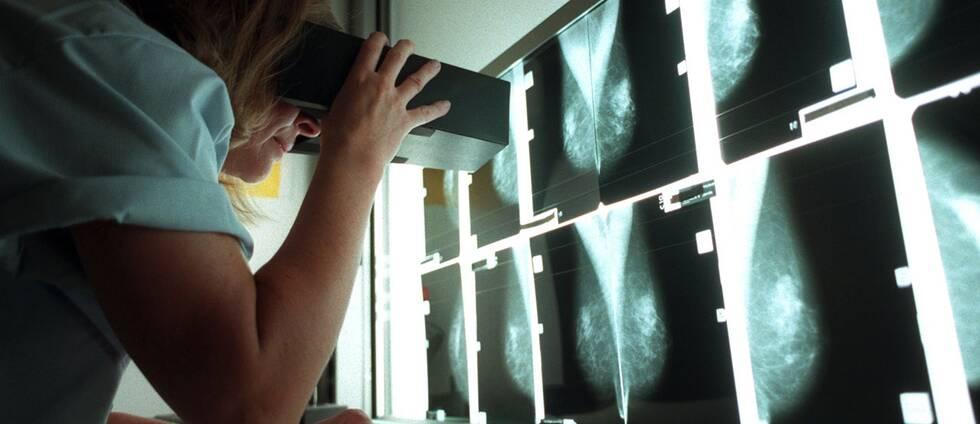 missade bröstcancer