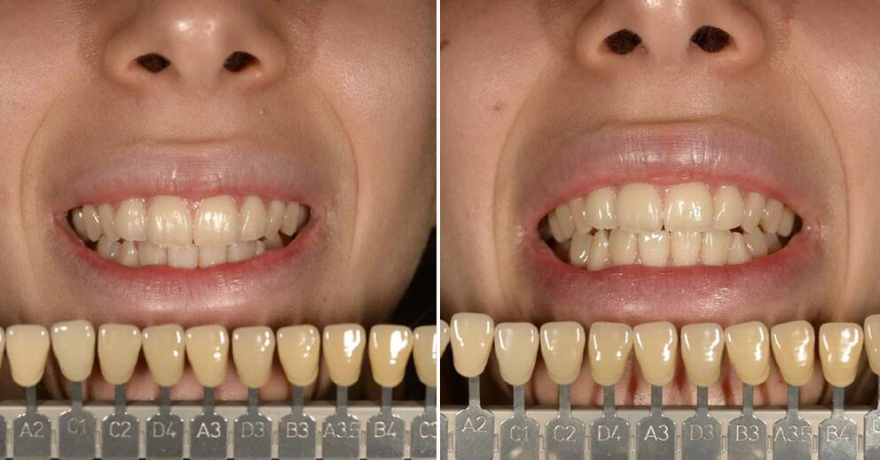 test tandkräm råd och rön