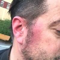 blödning i örat