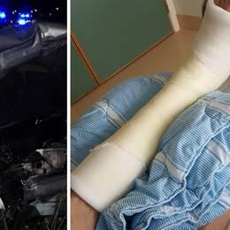 En bildmontage på en krockskadad bil och ett gipsat ben