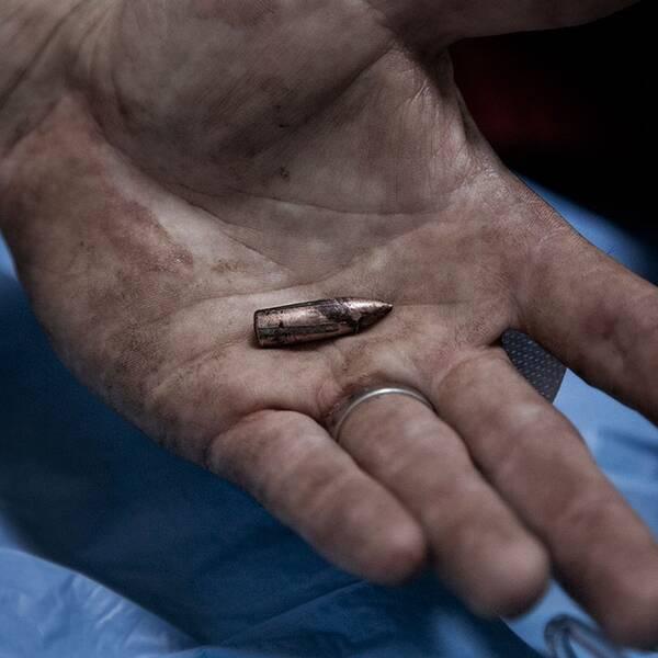 Kulan som läkarna grävde fram ur Paul Hansens rygg.