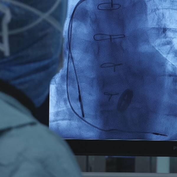 Operation av hjärtimplantat.