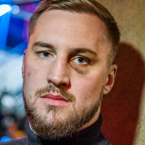 Otto Wallin övervägde att sluta med boxningen när kompisen Erik Skoglund drabbades av en hjärnblödning.