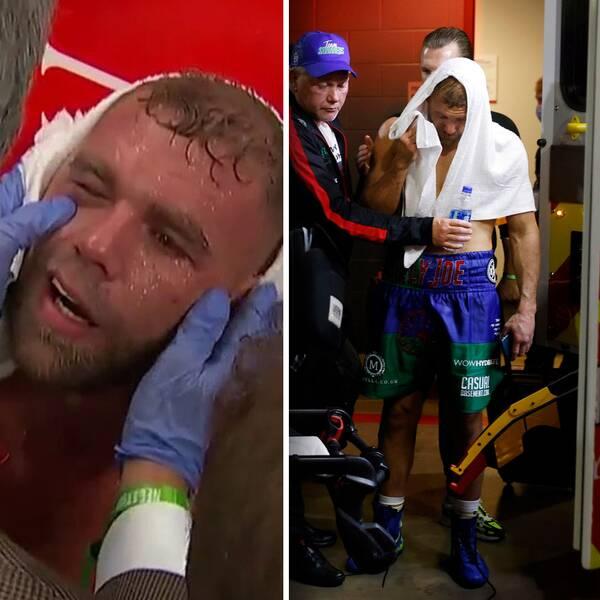 Billy Joe Saunders karriär är i fara efter skadan han ådrog sig i mötet med storstjärnan Canelo Alvarez i helgen.