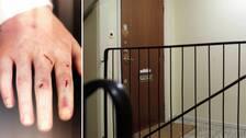 Hand med skador och blåmärken och en stängd dörr till lägenhet i trappuppgång.