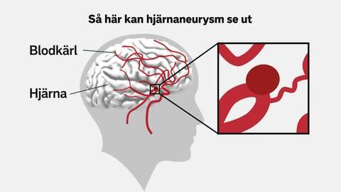 aneurysm i hjärnan prognos