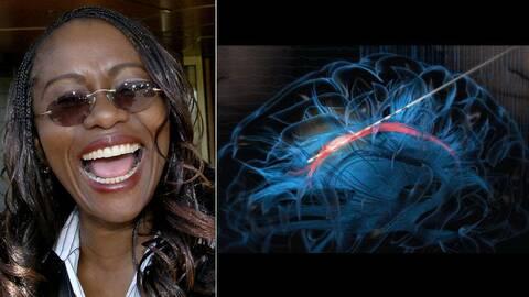 När forskarna stimulerade en del av det röda området i hjärnan, känslocentrumet, började patienten skratt