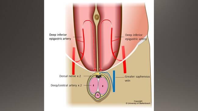 Forsta penisen transplanteras i usa