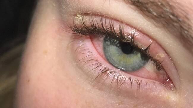 fransförlängning röda ögon