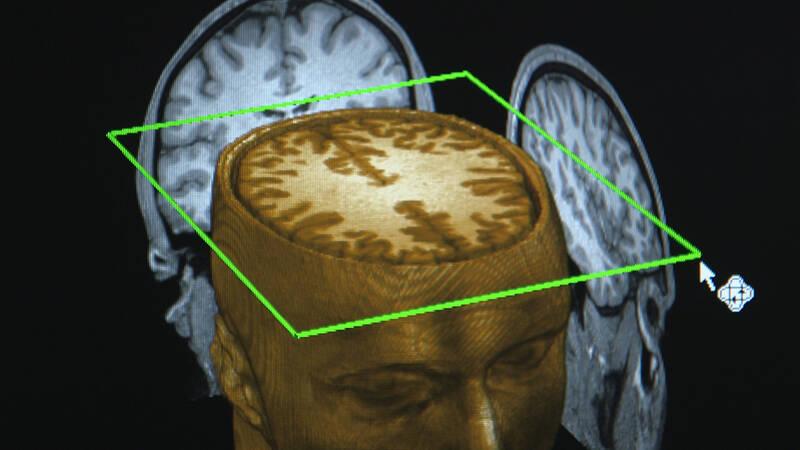 Hur mycket kan vi lita på vår förmåga att minnas? Minnet är inte ett fotoalbum där allting är uppmappat och sparat för evigt. Den senaste neuroforskningen visar på bevis för det: vi har falska, förvrängda och modifierade minnen, samt oklara déjà vus.