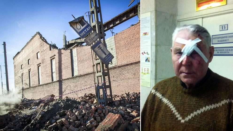 Mannen, som heter Viktor, är en av de skadade i meteroitnedslaget i Ryssland. Foto: Scanpix