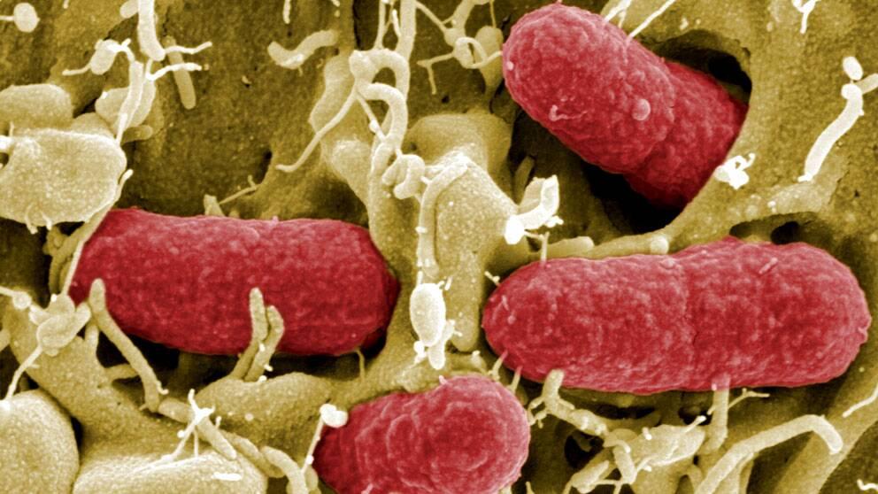 Närbild på ehec-bakterier.